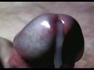 Unhealthy sperm production
